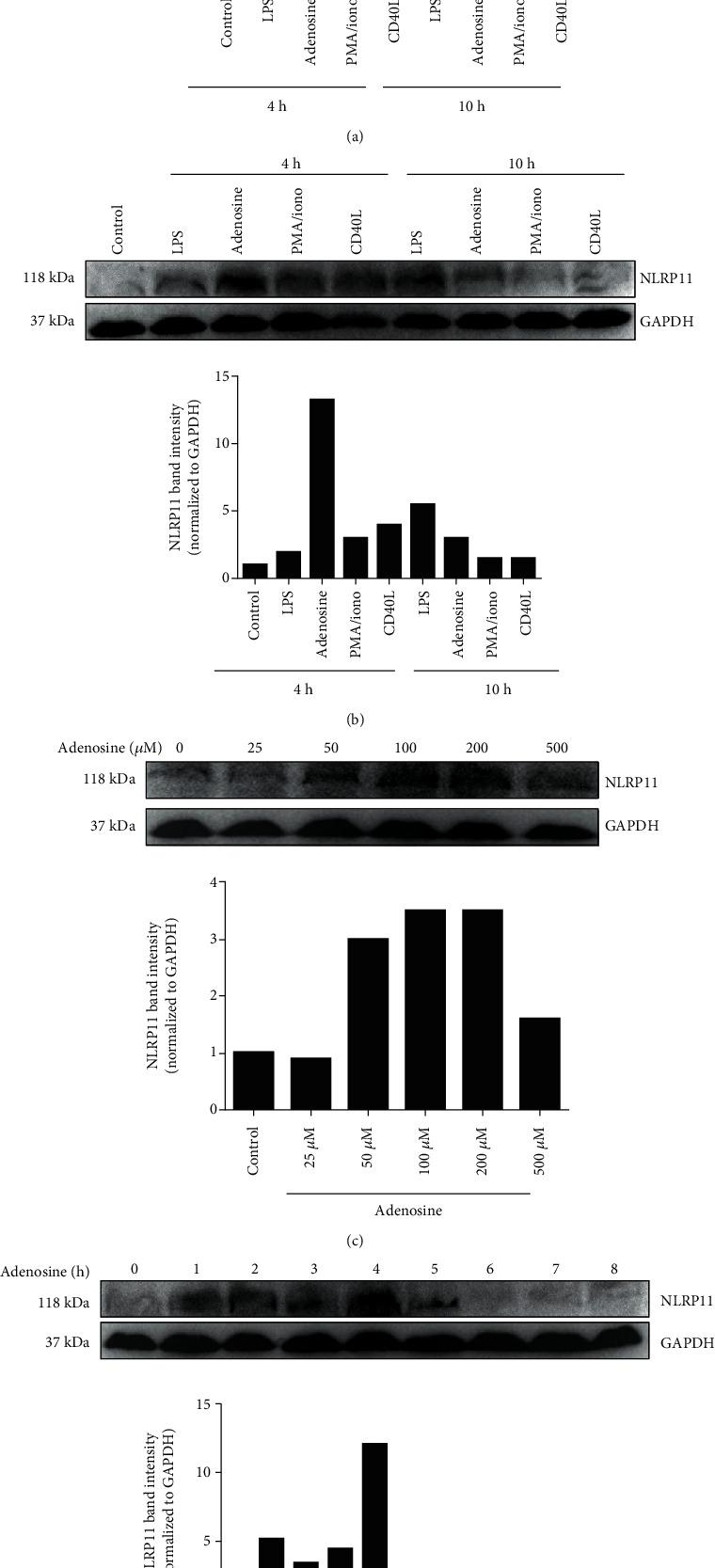 Adenosine treatment induced NLRP11 expression at both the mRNA and protein levels in B lymphoblasts. (a) NLRP11 mRNA expression after 4 and 10 hours of stimulation with PMA/ionomycin (50 ng/500 ng/ml), CD40L (1 μ /ml), LPS (100 ng/ml), and adenosine (50 μ M) ( ∗ indicates significance at P