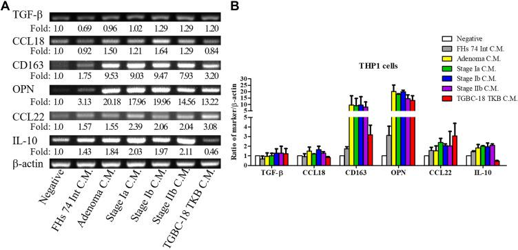 Expression of macrophage-associated cytokines in THP-1 cells. Notes: ( A ) THP-1 cells are activated using PMA for 3 days and then treated with conditioned medium from different cells for 3 days. The mRNA is purified, and the expression of macrophage-associated cytokines (OPN, IL-10, CCL18, CD163, and CCL22) is assessed using RT-PCR (n = 2). The negative control of THP-1 is treated with <t>RPMI-1640</t> medium and 1% FBS. ( B ) Semiquantitative analysis of cDNA is performed, and β-actin is served as the loading control. The feature of M2 macrophages in THP-1 cells is increased after stimulation with conditioned medium from ampullary cancer cells. The experiments are repeated twice because of the scarcity of conditioned medium from primary culture cells. FHs 74 Int, a cell line from normal epithelial cells of the small intestine. AC01, primary culture cells from ampullary adenoma. AC02, primary culture cells from stage Ia ampullary cancer. AC03, primary culture cells from stage Ib ampullary cancer. AC04, primary culture cells from stage IIb ampullary cancer. TGBC-18-TKB, cell line from ampullary cancer. Abbreviations: CCL18, C-C motif ligand 18; CCL22, C-C motif ligand 22; CD163, cluster of differentiation 163; C.M, conditioned medium; FBS, fetal bovine serum; IL-10, interleukin-10; OPN, osteopontin; PMA, phorbol 12-myristate 13-acetate; RPMI, Roswell Park Memorial Institute; RT-PCR, reverse transcription-polymerase chain reaction.