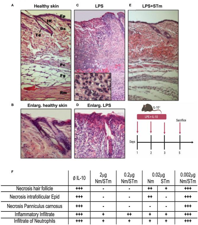 Suppression of LPS-induced dermal inflammation by Nm and STm. (A) Overview of healthy skin. Mouse skin consists of a 1–2-layer epidermis (Ep), which forms the hair follicles (Hf) and sebaceous glands (Td) by invagination in the dermis (De). The dermis consists of collagenous connective tissue. This is followed by the muscle layer of the Panniculus carnosus (Pc), the fatty tissue (Fg), and the trunk muscles (Rm). (B) Enlargement of healthy skin. The epithelium shows bluish cytoplasm and loose chromatin, as well as two intact hair follicles. (C) Overview of necrotic skin. In magnification, a large number of neutrophils is recognizable. (D) Enlargement of necrotic skin. The epithelial cells show reddish cytoplasm and condensed chromatin. The hair follicle is dead. (E) Overview skin section treated STm (2 μg) STm, which LPS was co-injected. (F) A table summarizing the effect of IL-10 (Nm/STm) at different concentrations on LPS-treated (10 μg) skin.