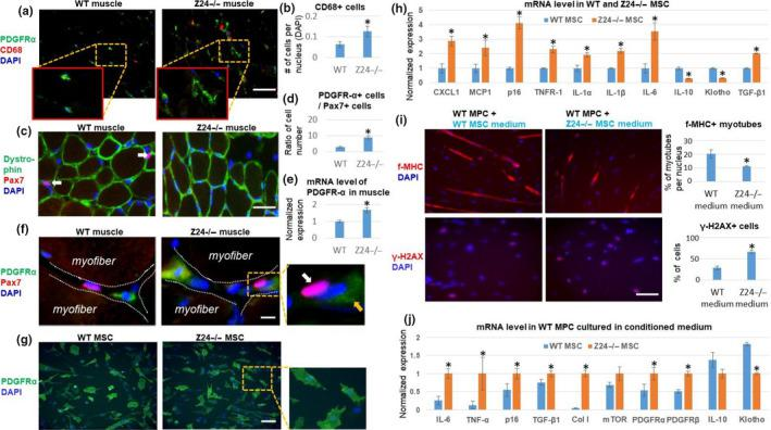 Increased expression of SASP factors in Z24 −/− MSCs negatively impacts muscle stem cell function. (a) Gastrocnemius (GM) skeletal muscle tissues were harvested from 5‐month‐old Z24 −/− and wild‐type (WT) mice. Immunostaining analysis of PDGFR‐α and CD68 showed increased number of PDGFR‐α + MSCs and CD68 + macrophages. Scale bar = 100 µm. (b) Quantification of CD68 + cells is shown. (c) Immunostaining analysis of dystrophin and Pax7 showed a decreased number of Pax7 + muscle stem cell in Z24 −/− mice. (d) Quantification of the ratio of the PDGFR‐α + cells to Pax7 + cells is shown. (d) Immunostaining analysis of PDGFR‐α and Pax7 demonstrating a close interaction between these two types of cells in stem cell niche. White arrow indicates a Pax7 + cell; orange arrow indicates a PDGFR‐α + cell. Scale bar = 50 µm. (e) Quantification of mRNA level of PDGFR‐α in muscles is shown. (f) Immunostaining analysis of PDGFR‐α and Pax7 to show their relative localization at stem cell niche. Scale bar = 10µm. (g) Immunostaining analysis of PDGFR‐α in mesenchymal stem/stromal cells (MSCs) from WT mice and Z24 −/− mice. Scale bar = 100 µm. (h) qPCR results of mRNA from WT MSC and Z24 −/− MSCs. (i) Treatment of WT muscle progenitor cells (MPCs) with conditioned medium from WT or Z24 −/− MSCs to check the impact on myogenesis potential [the formation of fast‐myosin heavy chain (f‐MHC)‐positive myotubes], and level of DNA damage (γ‐H2AX). Quantitation of cells positive with f‐MHC or γ‐H2AX is shown. Scale bar = 100 µm. (j) qPCR results of mRNA from WT MPCs treated with conditioned medium from WT or Z24 −/− MSCs. Data are shown as mean ± standard error. N ≥ 6. * indicates p