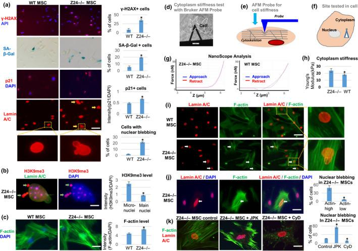 """Z24 −/− MSCs display increased senescent phenotypes, and enhanced F‐actin polymerization and cytoskeletal stiffness is directly associated with increased and nuclear blebbing. MSCs isolated from the skeletal muscle of WT and Z24 −/− mice were compared. (a) Immunostaining analysis of γ‐H2AX, p21 Cip1 , and lamin A/C was performed, as well as SA‐β‐Gal staining for senescence. Quantitation of γ‐H2AX + cells, SA‐β‐Gal + cells, p21 + cells, and cells with nuclear blebbing is shown. Scale bar = 30µm. (b) Immunostaining analysis and quantification of H3K9me3. The increased level of H3K9me3 (red) in the micronuclei in contrast to nucleus indicates the loss of heterochromatin from nucleus to micronuclei (arrows). Scale bar = 2.5 µm. (c) Staining of F‐actin with Alexa Fluor 488 Phalloidin and quantification of F‐actin polymerization. Scale bar = 20 µm. (d–g). Testing of cytoplasm stiffness using a Bruker AFM probe. H. The cytoplasm stiffness (kPa) calculated by NanoScope analysis. (i) Immunostaining analysis of lamin A/C and F‐actin in WT and Z24 −/− MSCs, showing higher level of F‐actin and nuclear blebbing in same Z24 −/− cell (arrow). Scale bar = 50 µm. (j) Immunostaining analysis of lamin A/C and F‐actin in Z24 −/− MSCs. Quantitation of nuclear blebbing is shown. The number of cells with nuclear blebbing was compared between cells with top 30% of F‐actin intensity (Actin‐high) and cells with bottom 30% of F‐actin intensity (Actin‐low). Scale bar = 30 µm. (k) Immunostaining analysis of lamin A/C and F‐actin to observe the effect of treatment of Z24 −/− MSCs with F‐actin stabilizing JPK (200 nM) or F‐actin depolymerizing CyD (100 ng/ml) for 48 hr. Quantitation of nuclear blebbing is shown. Scale bar = 15 µm. Arrows: nuclear blebbing. N ≥ 6. """"*"""" at bar charts indicates p"""