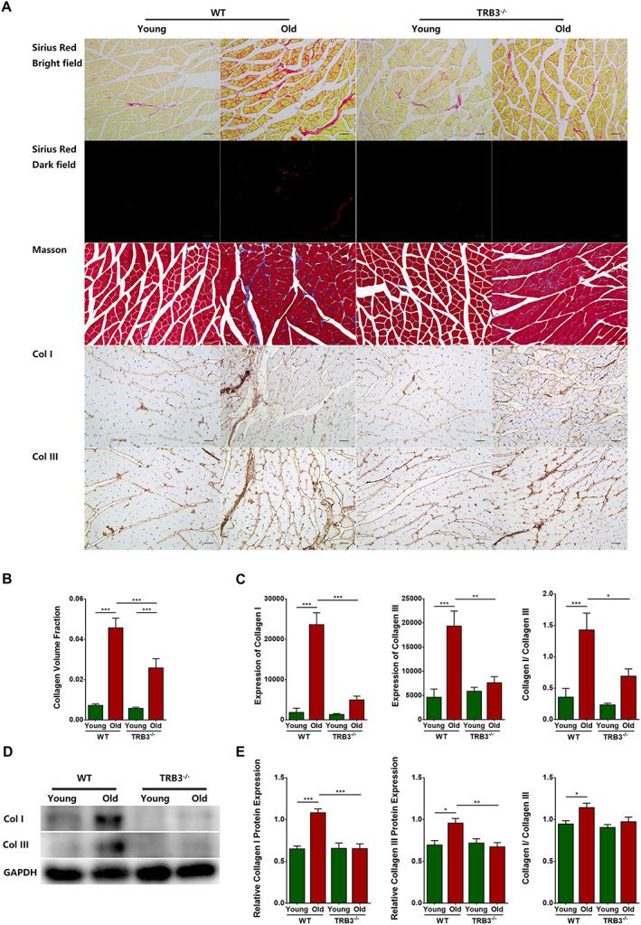 TRB3 knockout reduced skeletal muscle interstitial fibrosis in aged mice. Mice were divided into WT young group, WT old group, TRB3 −/− young group, and TRB3 −/− old group. (A) Bright‐field and dark‐field imaging of Sirius Red staining, Masson staining, and immunohistochemical staining of collagen I and collagen III. (B) Collagen volume fraction. (C) Immunohistochemical analyses of collagen I and collagen III expression. (D) Collagen I and collagen III expression detected through western blotting; GAPDH: internal reference. (E) Relative expression of collagen I and collagen III. N = 6–9; * P