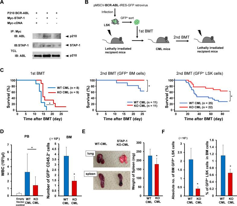 STAP-1 deficiency improves OS in in vivo CML mouse model. a BCR-ABL-transduced 293T cells were either or not co-transfected with Myc-tagged STAP-1. The cells were lysed, immunoprecipitated with anti-Myc antibody, and blotted with anti-ABL (upper panel) or anti-STAP-1 antibody (middle panel). An aliquot of total cell lysate (TCL) was also blotted with anti-ABL antibody (lower panel). b Experimental strategy for generation of CML mouse model. BCR-ABL-transduced LSK cells (1 × 10 4 cells, Ly5.2) were transplanted into lethally irradiated recipients (Ly5.1). For serial transplantation, GFP + BM cells or GFP + CD45.2 + LSK cells from primary CML mice were isolated at day 11 after first BMT, and transplanted into lethally irradiated secondary recipient mice (Ly5.1). c Kaplan–Meier survival curves for primary and secondary recipients of BCR-ABL-transduced cells from WT or STAP-1 KO donor mice are shown. d The total numbers of peripheral white blood cells and GFP + CD45.2 + cells in BM were analyzed at day 11 after first BMT (WT, n = 13; STAP-1 KO, n = 11). e Gross appearance of the lungs and spleens at day 11 after first BMT is shown. Bar graph represents the spleen weight of primary CML mice (WT, n = 11; STAP-1 KO, n = 12). f Leukemic stem cells (LSCs; GFP + LSK cells) in BM of primary CML mice were analyzed at day 11 after first BMT. The proportions and total numbers of CML LSCs in BM were calculated (WT, n = 13; STAP-1 KO, n = 11). Data are shown as mean ± SD. * p