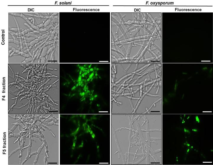 Membrane permeabilization assay Assay performed with fluorescence microscopy of cells of different filamentous fungi treated with the fluorescent probe Sytox green to evaluate membrane permeabilization. Control cells (grown in the absence of fractions) and treated cells with F4 and F5 fractions for 24 h. The assay were performed at the concentration of 200 µg.ml −1 and the cells were visualized by DIC and fluorescence; bars = 50 μm.