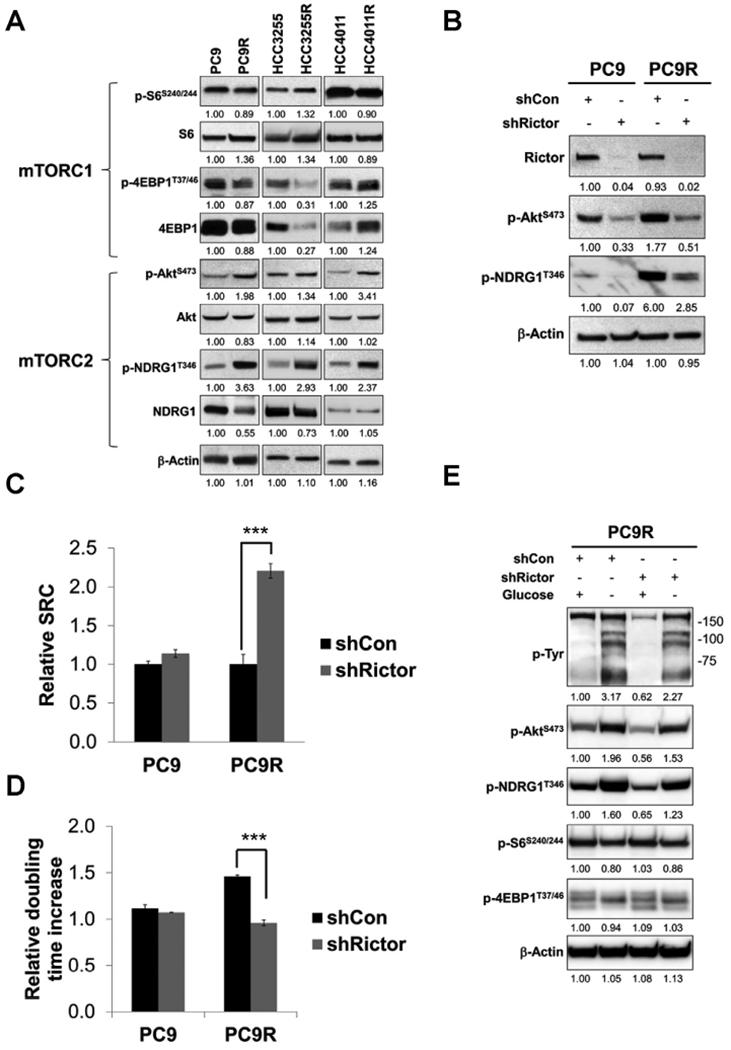 Inhibition of mTORC2 signaling increases spare respiratory capacity in erlotinib-resistant cells. A) Whole-cell lysates from isogenic NSCLC cell lines were subjected to western blotting analysis of mTORC1 and mTORC2 activities. Values below the figures, relative changes normalized to isogenic erlotinib-sensitive cells. (B) Whole-cell lysates from PC9 cells and PC9R cells stably transduced with the control shRNA (shCon) or Rictor shRNA (shRictor) were subjected to western blotting analysis of Rictor, p-Akt, p-NDRG1 and β-actin. Values below the figures, relative changes normalized to PC9 shCon. (C) The relative spare repository capacity (SRC) of PC9 cells and PC9R cells stably transduced with the control shRNA (shCon) or Rictor shRNA (shRictor) were measured by Seahorse mito stress assay. (D) PC9 cells and PC9R cells stably transduced with the control shRNA (shCon) or Rictor shRNA (shRictor) were cultured in the presence or absence of glucose. The relative doubling time was calculated as described in Fig. 1 . (E) PC9R cells stably transduced with the control shRNA (shCon) or Rictor shRNA (shRictor) were treated with complete or glucose-free medium for 24 h. Whole-cell lysates were subjected to western blotting analysis. Values below the figures, relative changes normalized to PC9R shCon in glucose repletion condition. Bars, SEM. ***P