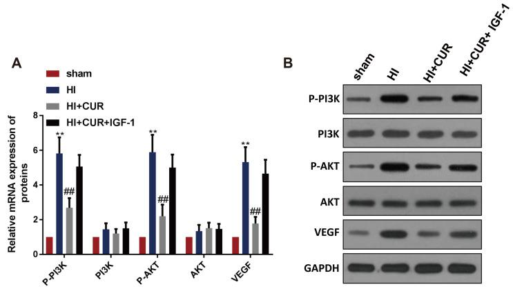 Inhibitory effect of curcumin on VEGF expression disappears via activating PI3K/Akt signaling pathway in neonatal rats with brain HI damage (n = 12 per group). (A) Band intensities from western blots were calculated. (B) The protein expression of p-PI3K, PI3K, p-Akt, Akt, and VEGF in the sham, HI, HI + CUR and HI + CUR + IGF-1 groups by western blotting. HI, hypoxic-ischemic injury; CUR, curcumin; IGF-1, insulin-like growth factor 1; VEGF, vascular endothelial growth factor; GAPDH, glyceraldehyde-3-phosphate dehydrogenase. **p