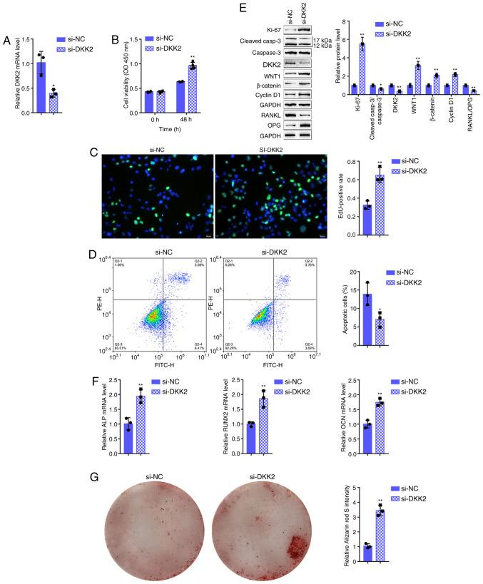 Effects of DKK2 on hFOB1.19 cell proliferation and osteogenic differentiation. (A) DKK2 knockdown was generated in hFOB1.19 cells by transfection with si-DKK2, as confirmed by RT-qPCR. hFOB1.19 cells were transfected with si-DKK2 and examined for (B) cell viability by CCK-8 assay; (C) DNA synthesis capacity by EdU assay, and (D) cell apoptosis by flow cytometric assay. (E) The protein levels of Ki-67, cleaved-caspase-3, caspase-3, WNT1, β-catenin, cyclin D1, RANKL and OPG were determined by western blot analysis, and (F) the mRNA expression of osteogenesis markers, including ALP, RUNX2, OCN and OPN, was determined by RT-qPCR. (G) The mineralization of hFOB1.19 cells was determined by Alizarin Red staining. * P