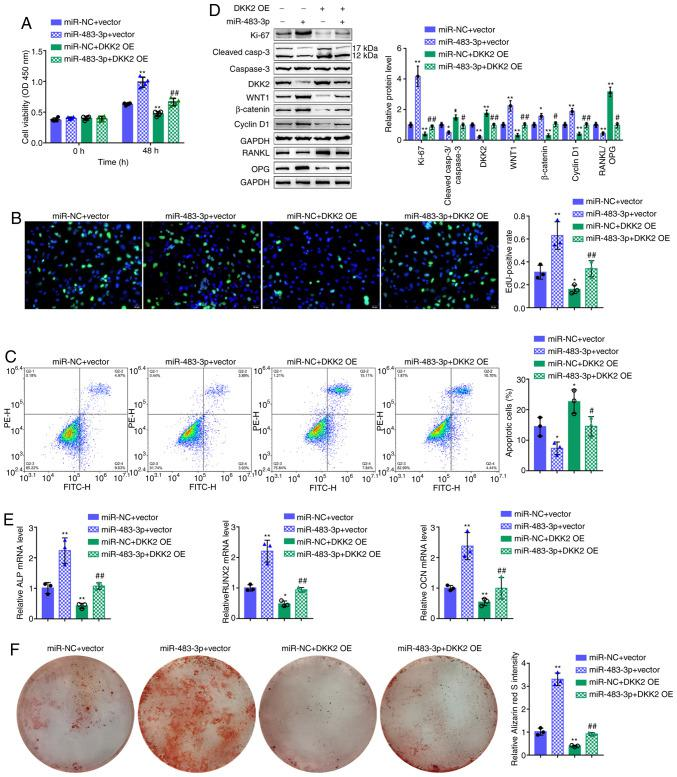 Dynamic effects of miR-483-3p and DKK2 on hFOB1.19 cell proliferation and osteogenic differentiation of hFOB1.19 cells co-transfected with miR-483-3p and DKK2 OE and examined for (A) cell viability by CCK-8 assay; (B) DNA synthesis capacity by EdU assay and (C) cell apoptosis by flow cytometry assay. (D) The protein levels of Ki-67, cleaved-caspase-3, caspase-3, DKK2, WNT1, β-catenin, cyclin D1, RANKL and OPG were detected by western blot analysis, and (E) the mRNA expression of osteogenesis markers, including ALP, RUNX2, OCN and OPN were determined by RT-qPCR. (F) The mineralization of hFOB1.19 cells was determined by Alizarin Red staining. * P