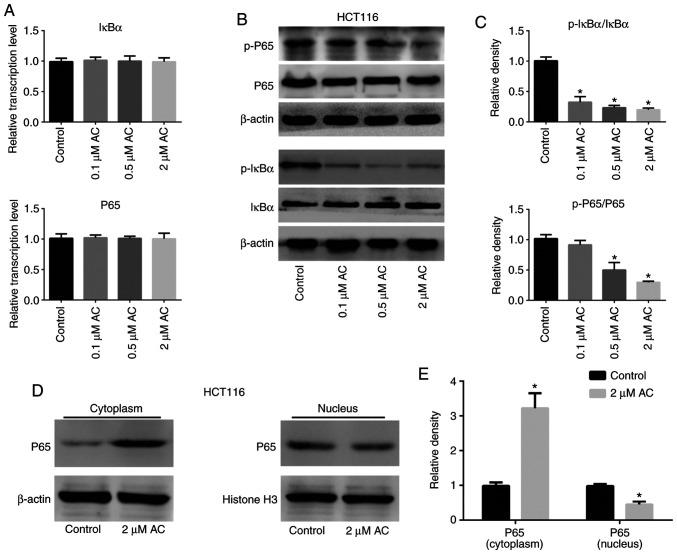 Effect of AC on the NF-κB signaling pathway. (A) mRNA and (B) protein expression levels of the NF-κB signaling pathway-related molecules IκBα, p-IκBα, P65 and p-P65 in HCT116 cells treated with AC for 72 h. (C) Quantification of the western blots. (D) Nuclear translocation of P65 detected by western blotting in HCT116 cells treated with 2 µ M AC for 72 h. (E) Quantification of the western blots. Data are expressed as mean ± standard deviation from three independent experiments. * P