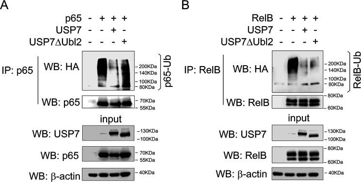 The Ubl2 domain is required for USP7 deubiquitination of p65 but not RelB. HEK293T cells were transfected with HA-tagged ubiquitin, USP7, USP7ΔUbl2, and p65 ( A ) or RelB ( B ). Denatured whole cell lysates were immunoprecipitated with anti-p65 ( A ) or anti-RelB ( B ) and analyzed by Western blotting ( WB ) with anti-HA antibody and anti-p65 ( A ) or anti-RelB ( B ) antibody. The expression of transfected USP7, USP7ΔUbl2, p65, and RelB in lysates used for immunoprecipitations ( IP , input ) was measured by Western blotting using antibodies against USP7, p65, and RelB. The positions of molecular mass markers are indicated to the right of each Western blot. The data are representative of at least three independent experiments.