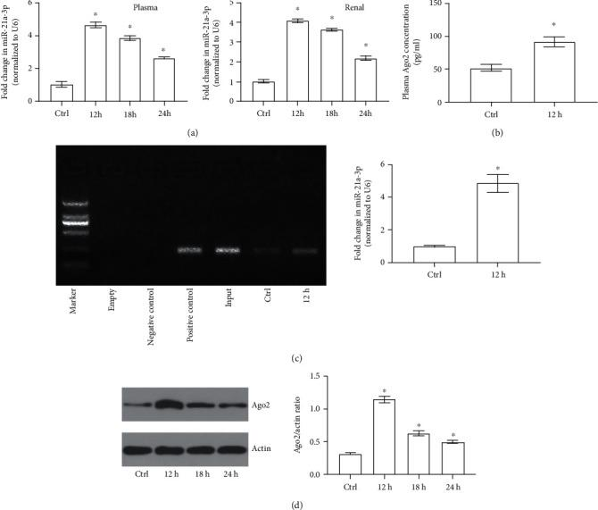 miR-21a-3p and Ago2 levels of both TECs and plasma during sepsis. (a) Quantitative analysis of RT-PCR results of miR-21a-3p of either plasma or TECs at different time points. (b) Quantitative analysis of ELISA for Ago2 concentrations of plasma at different groups. (c) Representative RIP results of Ago2 binding miR-21a-3p in plasma of different groups. (d) Representative Western Blot results of Ago2 in TECs of the control group and CLP groups at different time points ( ∗ P