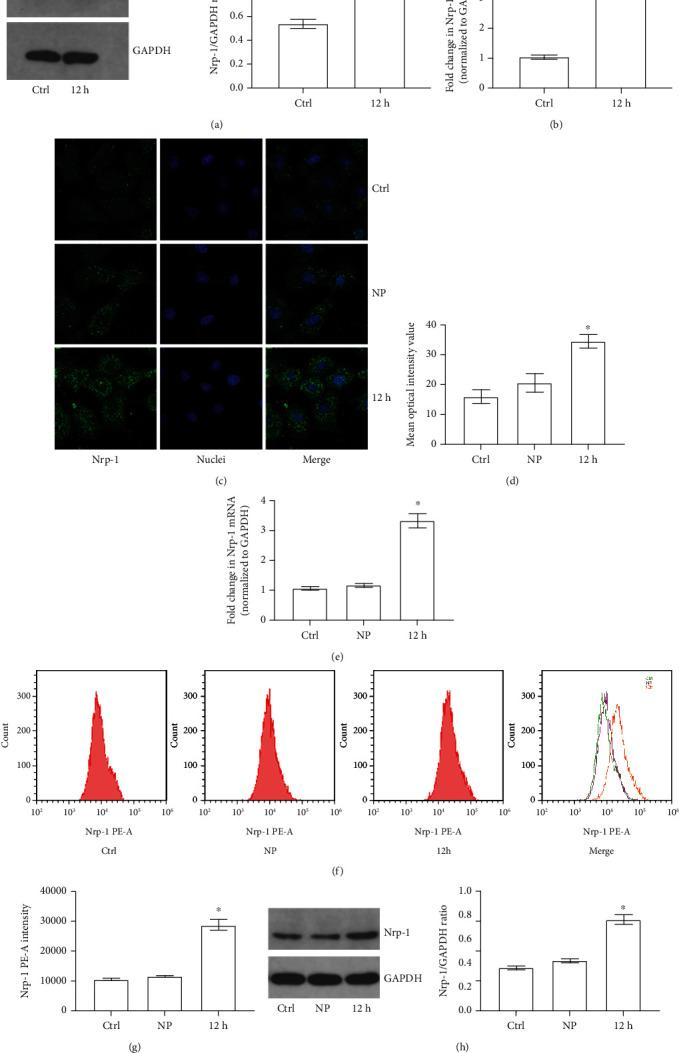 Nrp-1 expression and distribution of TECs in different groups. (a) Representative Western Blot results of Nrp-1 in TECs of either control or sepsis (12 h: 12 hours after CLP) rat model). (b) Quantitative analysis of RT-PCR results of Nrp-1 mRNA transcription level in TECs of either control or sepsis (12 h: 12 hours after CLP) rat model). (c) Representative fluorescent results of Nrp-1 expression and distribution of TECs treated with different plasma. (d) Quantitative analysis of fluorescent results of Nrp-1 expression. (e) Quantitative analysis of RT-PCR results of Nrp-1 mRNA transcription level in TECs treated with different plasma. (f) Representative flow cytometry results of membrane Nrp-1 on TECs treated with different plasma. (g) Quantitative analysis of flow cytometry results of membrane Nrp-1 on TECs treated with different plasma. (h) Representative Western Blot results of membrane Nrp-1 on TECs treated with different plasma ( ∗ P