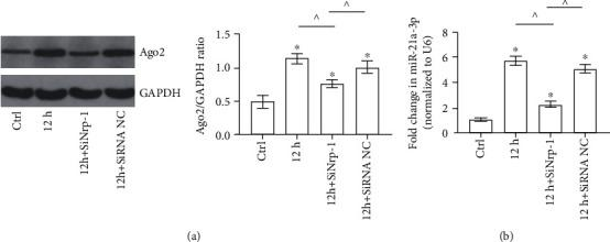 Ago2 and miR-21a-3p levels in TECs with or without <t>Nrp-1</t> knockdown treated with septic plasma. (a) Representative Western Blot results of cytoplasm Ago2 of TECs with different treatments. (b) Quantitative analysis of RT-PCR results of miR-21a-3p of TECs with different treatments ( ∗ P