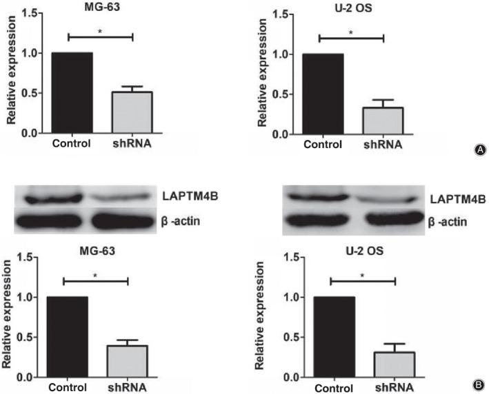 The expression levels of LAPTM4B were obviously decreased in both MG‐63 and U‐2 OS cells after the transfection of LAPTM4B‐targeted shRNA plasmids. (A) The results of quantitative PCR assays showed the obviously reduced expression levels of LAPTM4B in its short hairpin RNA (shRNA) plasmid‐transfected MG‐63 and U‐2 OS cells, respectively. (B) Immunoblot assays revealed the efficient decrease of LAPTM4B expression levels after the transfection of its shRNA plasmids in both MG‐63 and U‐2 OS cells. Results are presented as mean ± SD, * P