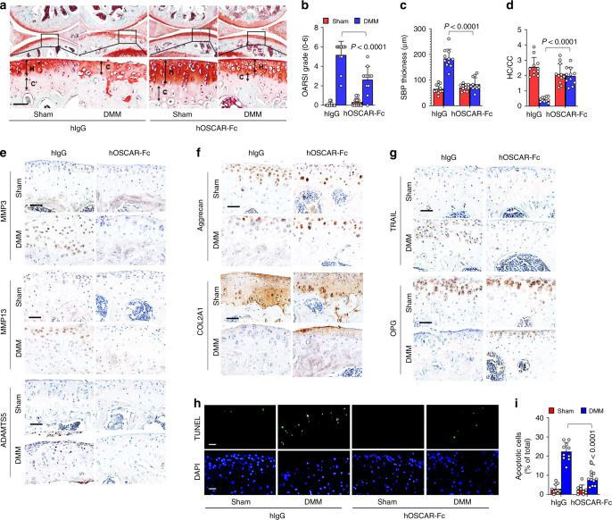 OSCAR-Fc blocks OA pathogenesis in mice. WT mice subjected to sham or DMM surgery were IA-injected with human IgG as a control or hOSCAR-Fc (2 mg kg −1 ) to block OSCAR in joint tissue. Articular cartilage sections were subjected to safranin-O staining ( a ) and quantitative analysis of OARSI grade ( b ), SBP thickness ( c ), and ratio of hyaline cartilage (HC) to calcified cartilage (CC) ( d ). Scale bar = 50 μm. Error bars represent mean ± S.E.M. of n = 10 mice ( b – d ). e – g IHC analyses of MMP3, MMP13, and ADAMTS5 ( e ), aggrecan and COL2A1 ( f ), and TRAIL and OPG ( g ) in articular cartilage tissue from sham surgery or DMM surgery mice ( n = 10). Scale bar = 50 μm. h , i Apoptotic articular chondrocytes were detected and quantified by TUNEL assay. Scale bar = 25 μm. Error bars represent mean ± S.E.M. of n = 10 mice ( i ). Two-way ANOVA was performed followed by Sidak's Multiple Comparison's test, with p values indicated in figure.