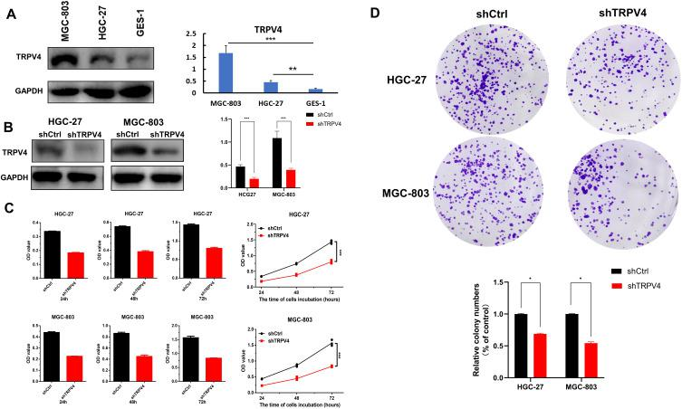The protein expression of TRPV4 in gastric cell lines and down-regulation of TPRV4 inhibited proliferation of gastric cancer cells. ( A ) The protein expression levels of TPRV4 were detected in gastric cancer cell lines (HGC-27 and MGC-803) and normal gastric mucosa cell GES-1 by Western blot. **P