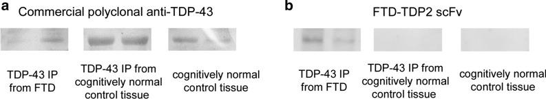 Western Blot Analysis. Reactivity against healthy control tissue and TDP-43 immunoprecipitated from healthy controls and FTD was assessed under non-reducing and non-denaturing conditions with ( a ) Commercial TDP antibody identifying TDP variants in FTD and healthy controls, and ( b ) FTD-TDP2 scFv which recognizes disease variant of TDP (~ 70 kDa) present in FTD and not healthy controls