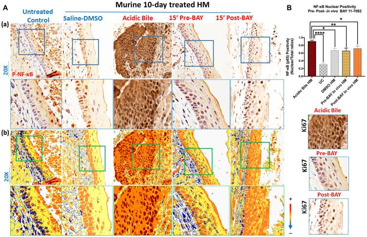 In vivo topical pre- or post-application of BAY 11-7082 inhibits the acidic bile-induced NF- κ B activation in 10-days exposed murine HM. ( A ) (a) IHC analysis for p-NF- κ B (p65 S536) (from left to right): control untreated HM, revealing cytoplasmic staining; saline-DMSO treated HM, demonstrating sporadic and weak cytoplasmic or nuclear staining in a few basal cells; acidic bile-treated HM, producing intense nuclear and cytoplasmic staining of basal and parabasal/suprabasal layers; pre-application inhibitor (BAY 11 7082) + acidic bile-treated HM, demonstrating nuclear or cytoplasmic staining mainly of cells of basal layer and weak cytoplasmic staining of suprabasal layers; acidic bile + post-application inhibitor (BAY 11 7082)-treated HM, demonstrating nuclear or cytoplasmic staining mainly of cells of basal layer and a weak nuclear or cytoplasmic staining of few cells in suprabasal layers; (b) Image analysis algorithm (s) (red: positive nuclear staining of p-NF- κ B; orange: intense positive cytoplasmic staining of p-NF- κ B; yellow: weak cytoplasmic staining of p-NF- κ B; blue: negative p-NF- κ B staining) [Images were captured using Aperio CS2 and analyzed by Image Scope software (Leica Microsystems, Buffalo Grove, IL) that generated algorithm (s) illustrating mucosal and cellular compartments demonstrating p-NF- κ B staining]. ( B ) Nuclear positivity of p-NF- κ B (p65 S536) in murine HM ( P values by t test; multiple comparisons by Holm-Sidak; GraphPad Prism 6.0) (positivity = nuclear-positive/total positive p-p65 staining). Acidic bile (pH 3.0) induces significantly higher positive nuclear p-NF- κ B (p65 S536) levels compared to saline-DMSO treated HM or untreated control. Topical pre- or post-application of BAY 11-7082 significantly decreases nuclear p-NF- κ B levels in acidic bile (pH 3.0) HM ( p values by t test; multiple comparisons by Holm-Sidak; GraphPad Prism 6.0) (positivity = nuclear-positive/total positive p-p65 staining).