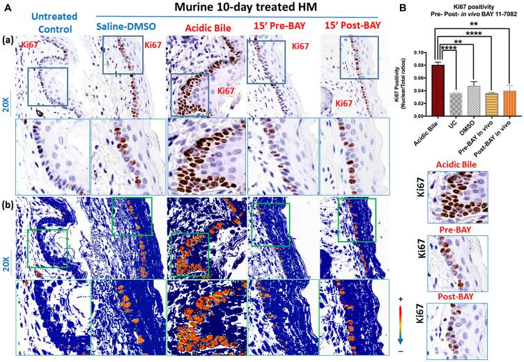 In vivo topical pre- or post-application of BAY 11-7082 prevents acidic bile-induced cell proliferation markerKi67 in 10-day exposed murine HM. ( A ) (a) IHC analysis for Ki67 (from left to right): control untreated HM , revealing weak cytoplasmic or nuclear staining in few basal cells; saline-DMSO treated HM , demonstrating sporadic and weak cytoplasmic or nuclear staining in cells of the basal layer; acidic bile-treated HM , revealing intense nuclear and cytoplasmic staining of cells of basal and parabasal layers; pre-application inhibitor (BAY 11 7082) + acidic bile-treated HM and acidic bile + post-application inhibitor (BAY 11 7082)-treated HM, producing weak nuclear or cytoplasmic staining in cells of the basal layer. (b) Image analysis algorithm (s) (red: nuclear positive staining of Ki67; orange: intense positive cytoplasmic staining of Ki67; yellow: weak cytoplasmic staining of Ki67; blue: negative Ki67 staining) [Images were captured using Aperio CS2 and analyzed by Image Scope software (Leica Microsystems, Buffalo Grove, IL) that generated algorithm (s) illustrating the mucosal and cellular Ki67 staining compartments]. ( B ) Graphs depict 10-day short-term exposure of HM to acidic bile (pH 3.0) inducing significantly higher positive nuclear Ki67 levels compared to saline-treated HM or untreated control. Topical pre- or post-application of BAY 11-7082 significantly decreases nuclear Ki67 levels in acidic bile (pH 3.0) HM ( p values by t test; multiple comparisons by Holm-Sidak; GraphPad Prism 6.0) (positivity = nuclear-positive/total-positive Ki67 staining).