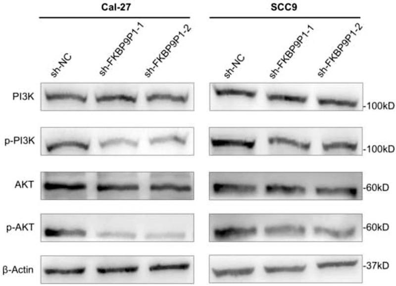 Knockdown of FKBP9P1 suppresses the PI3K/AKT signaling pathway in HNSCC cells. Western blotting results demonstrated that knockdown of FKBP9P1 suppresses the p-PI3K and p-AKT protein expression in HNSCC cells. FKBP9P1: FKBP prolyl isomerase 9 pseudogene 1; HNSCC: Head and neck squamous cell carcinoma; p-PI3K: Phosphorylation of PI3K; p-AKT: Phosphorylation of AKT.
