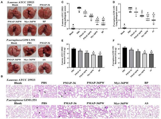 Therapeutic effect for pneumonia by Myr-36PW in vivo . Mice were injected with S. aureus ATCC 25923 or P. aeruginosa GIM 1.551 to form pneumonia, and lungs ( n = 5) in each group were collected on day 4 after intranasal bacterial inoculation. (A) Morphological changes of lung tissues. (B) Representative histopathological images of processed lung section with hematoxylin and eosin (H E) staining. Images are presented at a magnification of 20×. a: inflammatory cell infiltration. b: the alveolar wall is thickened. c: alveolar wall congestion or alveolar hemorrhage. (C,D) Pathological scores of the lung sections. Scoring standard: 1 indicated no pathology, 2 indicated local pulmonary congestion and inflammatory cell infiltration, 3 indicated pulmonary congestion and a large number of inflammatory cell infiltration, affecting