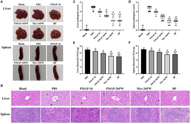 Therapeutic potency of peritonitis by Myr-36PW  in vivo . The livers and spleens ( n  = 5) in each group were collected on day 4 after the intraperitoneal injection of  S. aureus  ATCC 25923.  (A)  Morphological changes in liver and spleen tissues.  (B)  Representative histopathological images of processed liver and spleen sections with hematoxylin and eosin (H  E) staining. Images are presented at a magnification of 40×. a: central venous hemorrhage. b: the cells fuse into pieces, and the nucleus dissolves and disappears. c: cytoplasmic cavitation.  (C,D)  Pathological scores of the liver and spleen sections. Scoring standard: 1 indicated no pathology, 2 indicated perivascular infiltrates, 3 indicated perivascular or interstitial infiltrates affecting