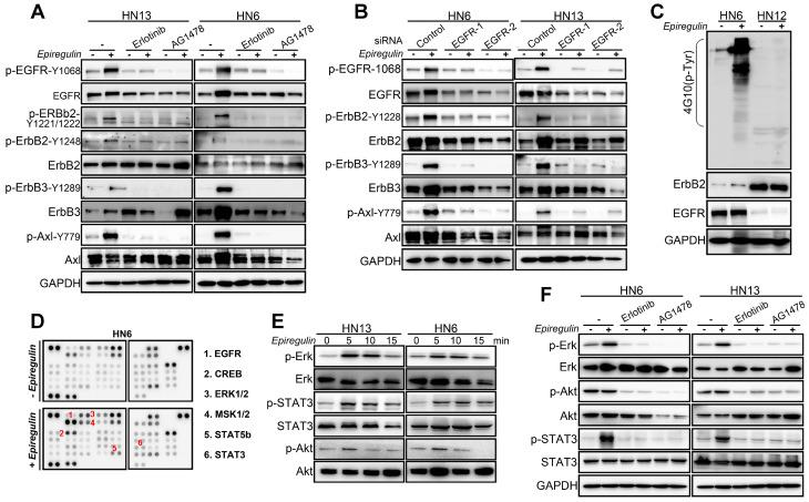 EREG triggers EGFR downstream signaling in an EGFR kinase-dependent manner. (A) HN13 and HN6 cells pretreated with erlotinib and AG1478 followed by epiregulin treatment and IB with the indicated antibodies. (B) IB of HN6 and HN13 cells transfected with individual small interfering RNAs (siRNAs) against EGFR in the presence or absence of epiregulin (50 ng/ml). (C) IB of HN6 and HN12 cells treated with or without epiregulin (50 ng/ml). (D) Human phosphokinase antibody array analysis of HN6 cells treated with or without epiregulin (50 ng/ml) for 5 min. (E) IB of HN13 (left) and HN6 (right) cells treated with epiregulin (50 ng/ml) at different time points. (F) HN6 and HN13 cells pretreated with erlotinib and AG1478 followed by epiregulin treatment and immunoblotting (IB) with the indicated antibodies.