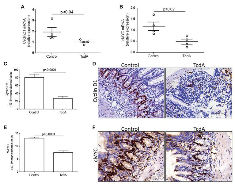 TcdA downregulates β-catenin target genes ( cMYC and cyclin D1 ) and reduces cyclin D1 protein in the ileum of the treated mice. (A) CCND1 and (B) cMYC mRNA expression in the ileum of mice treated with phosphate-buffered saline (PBS; control) or TcdA (10 μg) for 4 h, as evaluated by qPCR. Bars represent the means ± SEM of five mice in each group; Student's t -test. (C) Percentage of the cells showing positive cyclin D1 immunostaining. Data are the means ± SEM; Student's t -test. (D) Representative immunohistochemical images of cyclin D1 levels in the ilea of mice challenged with PBS (control) or TcdA (10 μg). (E) Percentage of the cells showing positive cMYC immunostaining. Data are the means ± SEM; Student's t -test. (F) Representative immunohistochemical images of cMYC expression in mouse ilea challenged with PBS (control) or TcdA (10 μg).