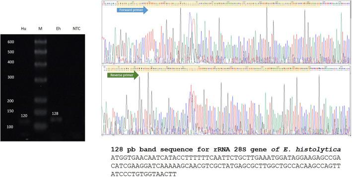 <t>PCR,</t> cloning and sequencing. Total DNA was extracted from 100 mg paraffin-embedded cerebral tissue using the Wizard Genomic DNA purification kit (Promega, Madison, WI, USA). DNA was quantified in a NanoDrop 2000 (Thermo Scientific, Waltham, MA, USA), obtaining an E. histolytica 128 bp amplicon for the rRNA gene, which was cloned with the <t>CloneJET</t> PCR Cloning Kit (Thermo Scientific) using a pJET1.2/blunt cloning vector. Then, the ligation mixture was used for transformation of Escherichia coli DH5a calcium-competent cells. Plasmid DNA was extracted from heat-shocked cells with the Zyppy Plasmid Miniprep (Zymo Research, Irvine, CA, USA). Clones were analyzed by PCR to verify the insertion of the amplicon into the pJET1.2/blunt vector. The plasmid sequence shows forward and reverse primers (electropherograms) that correspond to the E. histolytica rRNA gene sequence. Hu = 120 bp amplicon for human β-actin; M = bp marker; Eh = 128 bp amplicon for the E. histolytica rRNA 18 s gene, NTC = no template control
