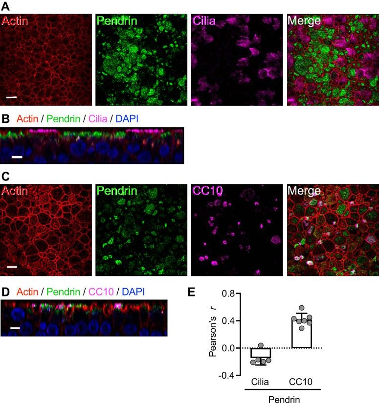 TNFα+IL-17 induce pendrin expression mainly in secretory cells. Human airway epithelia were treated with TNFα+IL-17 for 48 h. A and B : ciliated cells lacked significant pendrin expression. A shows an en face projection, and B shows an X-Z projection. C and D : pendrin-expressing cells were, in many cases, CC10+, which labels secretory cells. C shows an en face projection, and D shows an X-Z projection. Scale bars: A and C , 10 μm; B and D , 5 μm. E : colocalization of pendrin with ciliated cell and CC10 markers measured using the ImageJ software and reported as Pearson's correlation coefficient r ( n = 5–7).