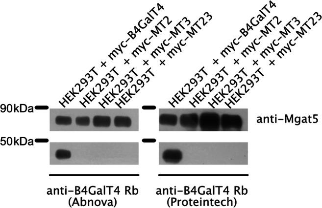 Secretion of different B4GalT4 versions. HEK293T cells stably overexpressing variants of B4GalT4 were cultured in <t>Opti-MEM</t> without FBS for 24 h. Conditioned media were concentrated by centrifugation in Amicon Pro 10 kDa cut-off membranes and analyzed by Western blotting with anti-B4GalT4 and anti-Mgat5 antibodies for protein assessment and loading control, respectively