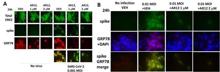 Representative images of GRP78 and SARS-CoV-2 spike protein expression and co-localization. A. and B. Vero cells were treated with vehicle control or AR12 (1 μM, 2 μM) and 6h later infected with SARS-CoV-2 as described in the Methods. Cells were fixed after 24h and the expression of GRP78 and ERK2 determined (n = 2 independent experiments each with 4 independent assessments +/-SD). Representative 60X images at the 24h timepoint of the colocalization of the virus spike protein (green) and GRP78 (red). DAPI (blue) staining is the nucleus.