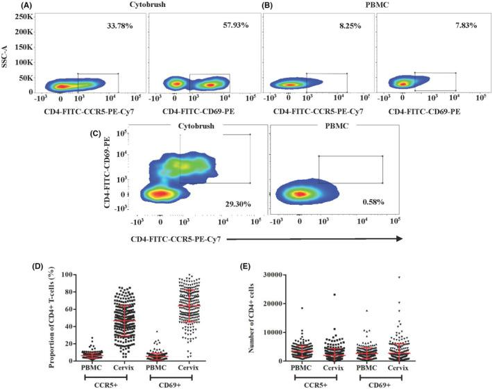 Flow cytometric gating strategy and baseline blood and cervical CD4 cells expressing CCR5 and CD69. Recovery of CD3 + CD4 + CCR5 + and CD3 + CD4 + CD69 + cells from (A) cervical cytobrush, (B) peripheral blood mononuclear cells (PBMC), (C) CD3 + CD4 + CCR5CD69 + double positives from cervical cytobrushes and PBMC (D) the proportion of CD3 + CD4 + CCR5 + and CD3 + CD4 + CD69 + from PBMC and cervical cytobrush demonstrating gating. Two senior laboratory scientists trained in advanced flow cytometry and masked to contraceptive group, independently reviewed and agreed upon gating parameters for each sample. The percent (D) and number (E) of CD3 + CD4 + CCR5 + and CD3 + CD4 + CD69 + cells in PBMC and cervical cytobrush samples collected from all evaluable participants at baseline, prior to initiation of any contraception. Mean values with SD are indicated with red bars and brackets, respectively