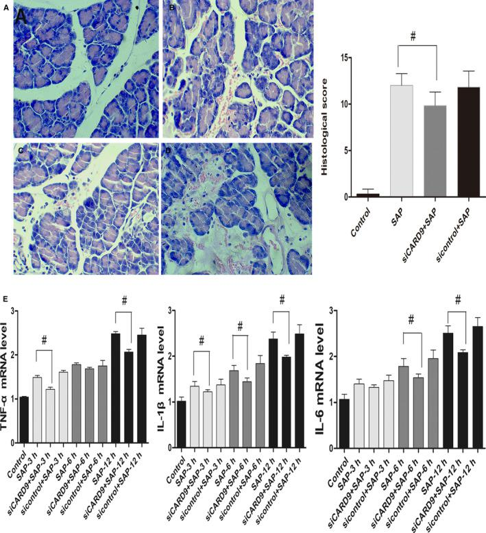 In vivo CARD9 siRNA alleviates pancreatitis severity and inhibits inflammatory cytokines in peritoneal macrophages. A, Histological examination of the pancreas in each group at the 12‐h time point (original magnification, 200×) and pathological scores for pancreatic tissue in each group. a: sham‐operation group; b: SAP group; c: siRNA group; d: sicontrol group. B, The level of TNF‐α, IL‐6 and IL‐1β in each group of peritoneal macrophages from SAP rats. #: SAP group vs siCARD9 group, P