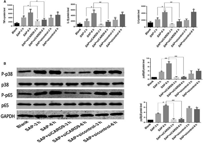 In vitro CARD9 siRNA alleviates Inflammatory reactions in peritoneal macrophages. A, The level of TNF‐α, IL‐1β and IL‐6 in each group of peritoneal macrophages. B, Phosphorylation of NF‐κB and P38 in peritoneal macrophages from each group at the 3‐ and 6‐h time points. The molecular weight of the NF‐κBp65 and P38 bands were 65 kD and 43 kD. *: SAP group or SAP + sicontrol group vs Blank group, P