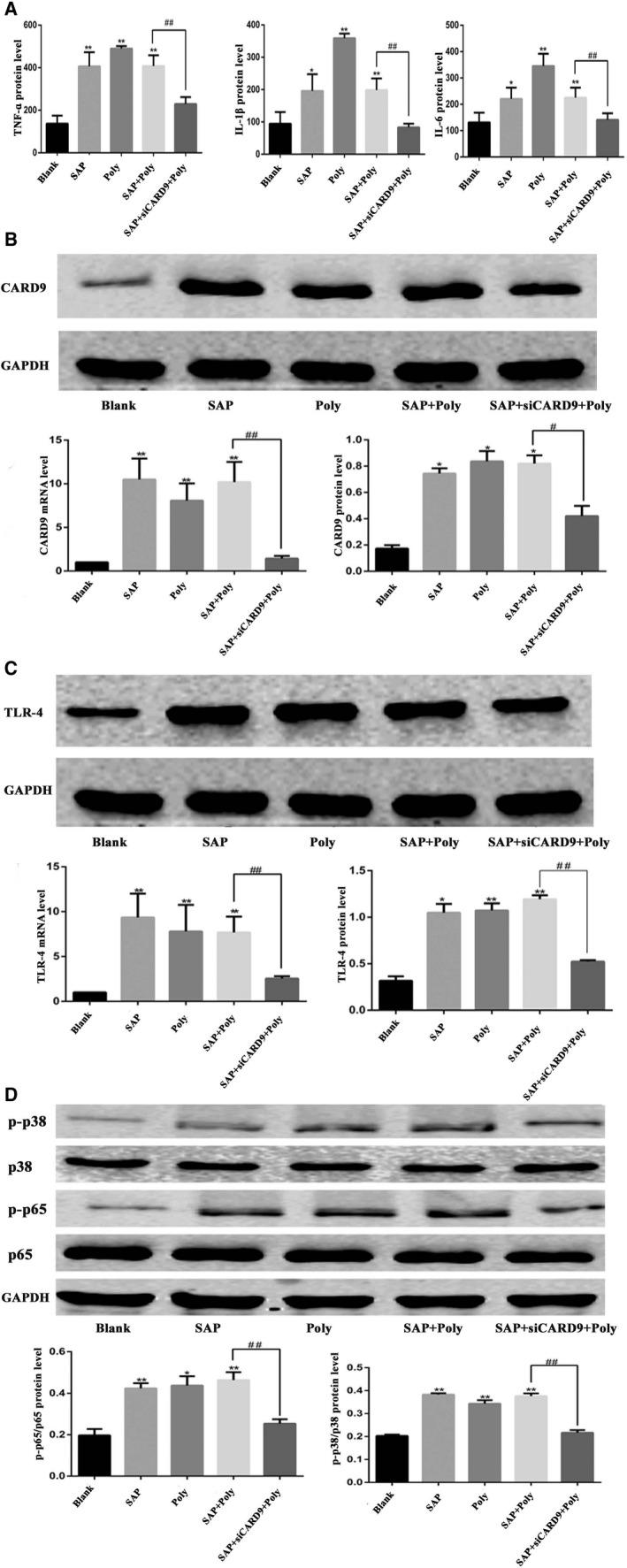 Activation of the TLR4 pathway by polyinosine and suppression of Card9 expression by the si‐Card9 adenovirus. A, The level of TNF‐α, IL‐1βand IL‐6 in cell culture medium from each group. B, mRNA and protein expression of CARD9 in each group. The molecular weight of the CARD9 bands was 62 kD. C, mRNA and protein expression of TLR4 in each group. The molecular weight of the TLR4 bands was 95 kD. D, Phosphorylation of NF‐κB and P38 in peritoneal macrophages from each group at the 6‐h time point. The molecular weight of the NF‐κBp65 and P38 bands were 65kD and 43 kD.*: SAP group or Poly or SAP + Poly group vs Blank group, P