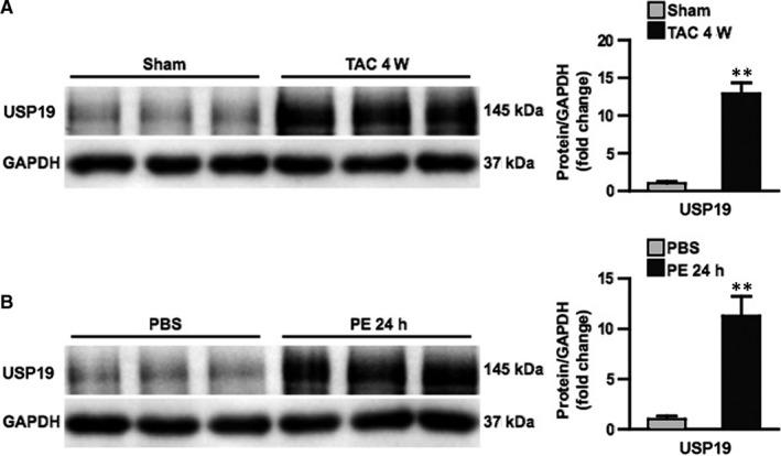 Ubiquitin‐specific protease 19 <t>(USP19)</t> expression is increased in murine hypertrophic hearts and cardiomyocytes. A, Left, Western blot bands of USP19 in mice subjected to sham or transverse aortic constriction (TAC) surgery at 4 wk. Right, protein expression levels were normalized to glyceraldehyde‐3‐phosphate dehydrogenase (GAPDH) and compared between indicated groups (n = 3, ** P < 0.01 vs sham). B, Left, Western blot analysis of USP19 in neonatal rat cardiomyocytes treated with phosphate buffered saline (PBS) or phenylephrine (PE) at 24 h. Right, protein expression levels were normalized to GAPDH and compared between indicated groups (n = 3, ** P < 0.01 vs PBS)