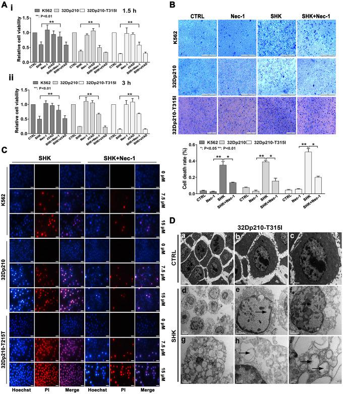 Shikonin induces necroptosis in CML cells. ( A ) Results of MTT proliferation assays in K562, 32Dp210, and 32Dp210-T315I CML cells treated with 10 μΜ shikonin for 1.5 h ( i ) or 3 h ( ii ) following pre-treatment (1 h) with Nec-1 (50 μΜ) or zVAD-fmk (35 μΜ). Data are presented as the mean ± SD of three independent experiments. ( B ) Trypan blue exclusion assay results. CML cells were pretreated with or without 50 μΜ Nec-1 for 1 h and subsequently exposed to 10 μΜ shikonin for 3 h. The cells were then stained with trypan blue and the percentage of dead cells was determined under light microscopy. ( C ) Hoechst 33342/PI double staining was performed in CML cells preincubated with or without 50 μΜ Nec-1 and then treated with 0, 7.5, or 15 μΜ shikonin for 3 h. The percentage of PI-permeable cells in each group was determined by fluorescence microscopy. Blue fluorescence indicates staining with Hoechst 33342 and red fluorescence indicates PI staining. A few cells exhibited apoptotic characteristics (chromatin condensation and nuclear fragmentation), as indicated by white arrowheads. Magnification, 200×. ( D ) Electron microscopic examination of 32Dp210-T315I cells treated with 20 μM shikonin for 3 h revealed typical necrotic changes, including disorganization and loss (empty bubble-like formations) of cytoplasmic structures and plasma membrane rupture ( d , g , h ); syncytial nuclei with chromatin dissolution and disappearance of nucleoli ( e , f ); and severe damage to mitochondria with disruption of internal structures ( i ). Scale bars: 5 μm ( a , d ), 2 μm ( b , c , e , f , g ), 0.5 μm ( h ), and 0.2 μm ( i ). Quantification data are presented as the mean ± SD of three independent experiments. Representative results from three samples are shown. *p