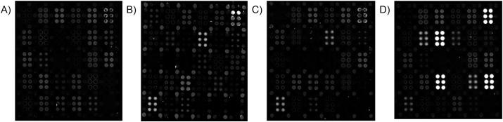Representative AIR array images of (A) 5% FBS; (B) 10% PNHS; (C) a negative single-donor sample, and (D) one convalescent serum sample. Strong responses to SARS-CoV-2 antigens are readily observed in (D), but not in (A), (B), or (C), while responses to circulating coronaviruses HKU, OC43, and 229E are observed in (B), (C), and (D). In each case, samples were diluted 1:20 in Adarza diluent, and incubated with the arrays overnight at 4 °C. See Fig. 1 for key to the array. All arrays in this figure were imaged at an exposure of 100 ms.