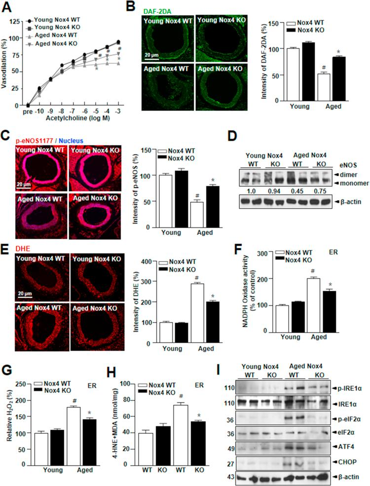 Nox4 activates aging-associated oxidative stress and endothelial dysfunction. Aortas from young (2-month) Nox4 WT, KO and aged (23- to 24-month) Nox4 WT, KO mice. ( n = 7 animals per group) (A) Endothelial-dependent vasodilation to acetylcholine. Representative aortic sections (scale bars, 20 μm) were stained for DAF-2DA (B), p -eNOS (ser 1177) (C). Immunoblotting analysis of eNOS-dimers and -monomers in the young and aged aorta (D). Representative aortic sections(scale bars, 20 μm) were stained for DHE (E). Lysates from aorta tissues were analyzed for NADPH oxidase activity (E), hydrogen peroxide level (F), 4-HNE-malondialdehyde (MDA) level (G) in the aorta ER fraction. (H) Western blots analysis of p-IRE1α, IRE1α, p -eIF2α, eIF2α, ATF4, GRP78, CHOP, and β-actin expression in aorta tissues. ( n = 7 animals per experimental group). Data are mean ± standard deviation. # , p