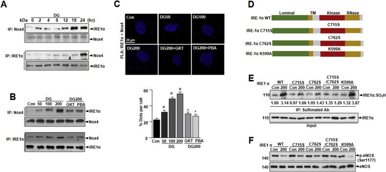 IRE1α physically interacts with Nox4 and controls NO bioavailability in D-gal-induced endothelial senescence. Lysates were immunoprecipitated and immunoblotted with anti -Nox4 antibody and immunoblotted with anti-IRE1α antibody for indicated times (A) and dose (B). The proximity ligation assay (PLA) assay with fluorescence images of HUVECs are shown (C). Quantification of the number of positive PLA dots per cell (Nox4 and IRE1α interactions) are shown for indicated samples. (D) Schematic of IRE1α structure and the mutants analyzed (TM; transmembrane domain). (E) Immunoprecipitation using anti-sulfonate antibody was conducted in cells with transiently transfected IRE1α wild type (WT) and IRE1α mutant plasmid tagging to flag (C715S/C762S, C762S, C715S, and K599A). (F) Western blots of anti -phospho-eNOS Ser1177 or total-eNOS antibody were performed in cells transiently transfected with IRE1α wild type (WT) and IRE1α mutant plasmid tagging to flag (C715S/C762S, C762S, C715S, and K599A). Scale bars, 20 μm. Data are mean ± standard deviation. # , p