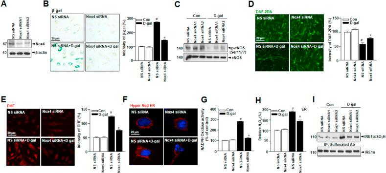 Nox4 deficiency in cultured endothelial cells improves vascular function in D-gal-induced endothelial senescence. (A) HUVECs were transiently transfected with Nox4 siRNA, followed by transfection with pcDNA-Nox4 or empty vector. (B) Representative senescence-associated β-galactosidase (SA-β-gal) staining in HUVECs. (C) Western blots analysis of anti -phospho-eNOS Ser1177 or total-eNOS antibody. (D) Representative fluorescent images of NO formation in HUVECs were shown using NO probe DAF-2DA. (E) Representative cells were stained for DHE. (F) Images showing cell transfected with ER-targeted HyPer-Red (HyPer Red ER). ER NADPH oxidase activity (G) and hydrogen peroxide level (H) were measured in HUVECs. (I) Irreversible sulfonation of IRE1α was analyzed with transiently transfected with non-specific-siRNA or Nox4 siRNA. Scale bars, 20 μm. Data are mean ± standard deviation. # , p