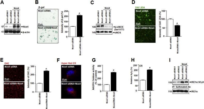 Nox4 overexpression in cultured endothelial cells suppresses vascular function in endothelial senescence. (A)HUVECs were transiently transfected with non-specific siRNA or Nox4 siRNA, followed by transfection with pcDNA-Nox4 or empty vector. (B) Representative senescence-associated β-galactosidase (SA-β-gal) staining in HUVECs. (C) Western blots of anti -phospho-eNOS Ser1177 or total-eNOS antibody. (D) Representative fluorescent images of NO formation in HUVECs are shown using the NO probe DAF-2DA. (E) Representative aortic sections were stained for DHE. (F) Images showing cells transfected with ER-targeted HyPer-Red (HyPer Red ER). ER NADPH oxidase activity (G) and hydrogen peroxide levels (H) in HUVECs were measured. (I) Irreversible sulfonylation of IRE1α was analyzed by western blots. Scale bars, 20 μm. Data represent mean ± standard deviation. # , p