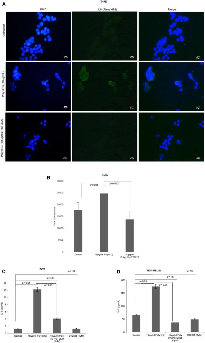 Expression of IL-6 following MyD88 inhibitor and TLR3 ligand treatment.  (A)  Fluorescent microscopy image of T47D cells, treated with TLR3 ligand (10 μg/ml) with or without MyD88 inhibitor (1 μM) following immunocytochemical staining with antibody against IL-6 and Alexa 488-tagged secondary antibody and counterstained with DAPI. Untreated indicates the cells are not treated with TLR3 ligand (magnification, 40X).  (B)  Bar graph showing the expression of IL-6 following observation through a microscope and analyses through the ImageJ software for all the experiment groups.  (C,D)  Expression of IL-6 in the cell culture supernatant as measured through ELISA. The results are presented as mean ± SD ( p
