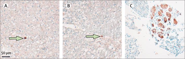 Distribution of SARS-CoV-2 within the CNS Representative images of viral protein-positive cells (green arrows) in the medulla oblongata detected by anti-nucleocapsid protein antibody (A) or anti-spike protein antibody (B). (C) SARS-CoV-2 nucleoprotein (brown staining ) could also be detected in subsets of cranial nerves originating from the lower brainstem. SARS-CoV-2=severe acute respiratory syndrome coronavirus 2.