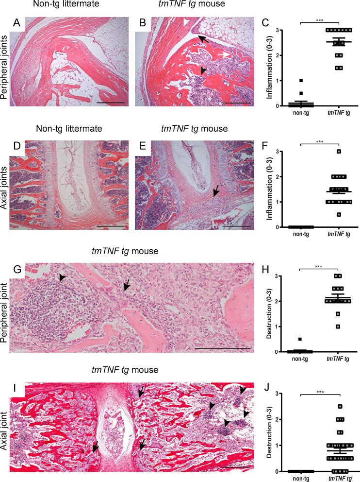 Inflammation and bone and cartilage destruction in peripheral and axial joints of tmTNF tg mice. (A) H E staining of ankle joint of a 100-d-old nontg littermate. (B) H E staining of a 100-d-old tmTNF tg mouse reveals synovitis (black arrow), osteitis (white arrow), enthesitis (white arrowhead), and lymphoid aggregates (black arrowhead). Scale bars, 200 µm. (C) Semi-quantitative score (0–3) of inflammation in ankle joints of tmTNF tg mice compared with nontg littermates (nontg, n = 7; tmTNF tg , n = 7, both ankles per mouse, in two independent experiments). (D) H E staining of an axial joint of a 100-d-old nontg littermate. (E) H E staining of axial joint sections of a 100-d-old tmTNF tg mouse, displaying cellular infiltrate (black arrow) in the connective tissue next to the intervertebral disc. Scale bars, 200 µm. (F) Semi-quantitative score (0–3) of inflammation in axial joints of tmTNF tg mice compared with nontg littermates (nontg n = 30, tmTNF tg n = 44, in four independent experiments). (G) H E staining of an ankle of a 100-d-old tmTNF tg mouse with destruction (black arrow) and lymphoid aggregate (black arrowhead). Scale bars, 100 µm. (H) Semi-quantitative score (0–3) of destruction in peripheral joints of tmTNF tg mice compared with nontg littermates (nontg, n = 7; tmTNF tg , n = 7, both ankles per mouse, in two independent experiments). (I) H E staining of an axial joint of a 100-d-old tmTNF tg mouse indicating destruction by disruption of the cartilage endplate (black arrows) and lymphoid aggregate (black arrowheads). Scale bars, 200 µm. (J) Semi-quantitative score (0–3) of destruction in axial joints of tmTNF tg mice compared with nontg littermates (nontg, n = 29; tmTNF tg , n = 37, in four independent experiments). The P value was determined by a Mann–Whitney test (C, F, H, and J). Data are representative of two independent experiments with two replicates (A–F) per sample. Values are mean ± SEM; ***, P