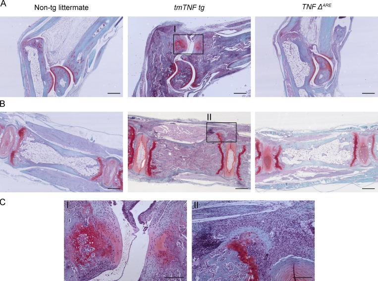 Endochondral new bone formation is only present in tmTNF tg mouse. (A) Safranin-O/fast green stainings of ankle joints of a nontg, tmTNF tg , and TNF ΔARE mouse reveals that the tmTNF tg ankle has clear bone formation, while the TNF ΔARE and nontg do not. Scale bars, 500 µm. (B) Safranin-O/fast green stainings of axial joints of a nontg, tmTNF tg , and TNF ΔARE mouse. The tmTNF tg axial joint reveals inflammation adjacent to bone formation, whereas the TNF ΔARE and nontg do not have these features. Scale bars, 500 µm. (C) Magnified view of tmTNF tg axial and ankle joint of region with endochondral ossification. Scale bars, 200 µm. n = 3 mice per group.