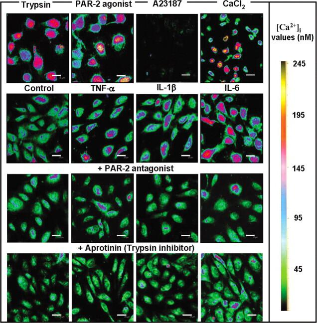 Effects of cytokines trypsin, and protease-activated receptor (PAR) 2 agonist on [Ca 2+ ] i and rescue of the increase in [Ca 2+ ] i by PAR-2 antagonist and aprotinin in endothelial cells. The cells were treated for 10 h with 1 µg/mL trypsin, 10 µM PAR-2 agonist, 10 mM calcium ionophore A23187, and 2 mM CaCl 2 . The cells were stimulated without (control) or with 10 ng/mL tumor necrosis factor (TNF) α, interleukin (IL) 1β, and IL-6. For inhibition studies on [Ca 2+ ] i , the cells were pretreated for 30 min with 20 µM PAR-2 antagonist FSY-NH 2 or 50 µM aprotinin and then treated with these cytokines. Fluorescence images of the cells were analyzed by a confocal microscope. [Ca 2+ ]i values (nM) are displayed using a color scale. Scale bars are 25 µm.