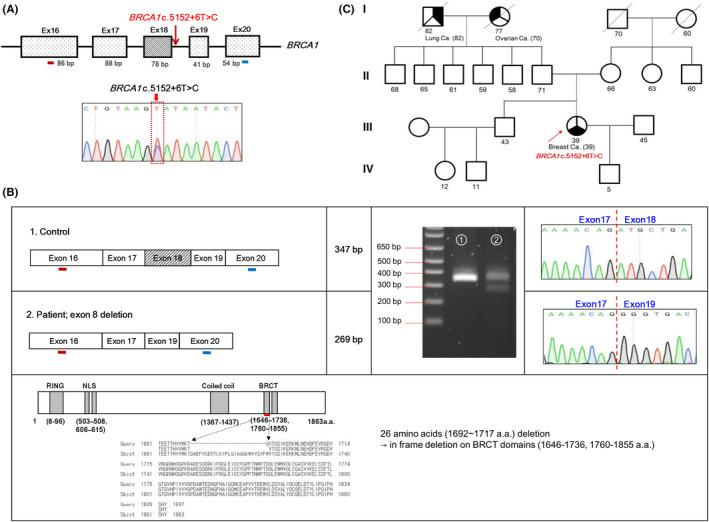 Exon splicing analysis of the BRCA1 c.5152+6T > C variant of patient PT51. A, Schematic view of variant c.5152+6T > C localization in the BRCA1 gene. PCR primer alignment is indicated with the red and blue bars. Sequencing analysis for genomic DNA is presented below. B, RT‐PCR of lymphocyte‐derived RNA. Predicted scheme of mRNA transcript in control or patient samples (upper right panel). Agarose gel (2%) electrophoresis; lane 1: control sample; lane 2: patient sample. Two PCR products were detected in the patient sample (upper middle panel). Chromatogram sequences of the control and abnormal transcripts. Vertical line in the chromatogram indicates the exonic junction in transcripts. Exon 18 (78 bp) skipping between exon 17 and exon 19 was identified (upper left panel). Functional domains of BRCA1 and sequence alignment of the BRCA1 abnormal transcript (lower panel). Amino acid sequences of the splice variant (c.5152+6T > C) were aligned using a reference sequence (NP_009225.1) via NCBI BLAST ( https://blast.ncbi.nlm.nih.gov/Blast.cgi ). BRCA1 c.5152+6T > C was identified to encode a BRCA1 protein with an in‐frame deletion (26 amino acids) in the BRCA1 C‐terminal (BRCT) domain; this may affect the function of the BRCA1 BRCT domain. The red line indicates the location of the in‐frame deletion residues. C, Pedigree of patient PT51