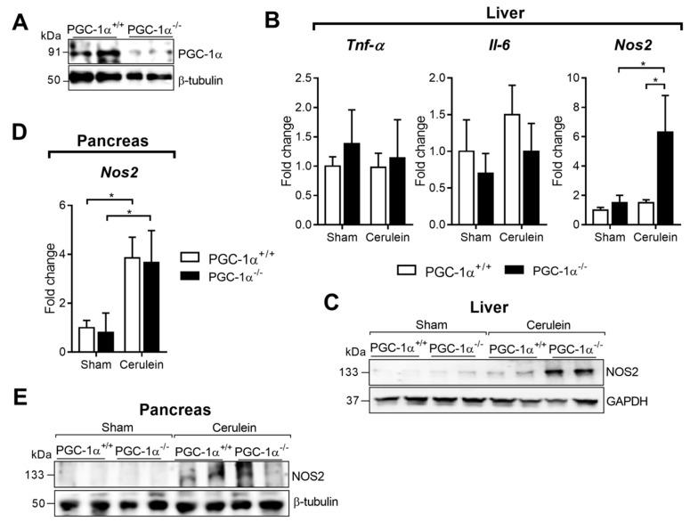 ( A ) Representative Western blot of PGC-1α in the livers of PGC-1α +/+ (WT—wild-type) and PGC-1α -/- (KO—knockout) mice. Β-tubulin was used as the loading control. ( B ) mRNA relative expression of Tnfa , Il6 and Nos2 versus Tbp (TATA binding protein; housekeeping) in the livers of the sham PGC-1α +/+ (WT) and PGC-1α -/- (KO) mice and at 1 h after cerulein-induced acute pancreatitis (AP) (Cerulein). ( C ) Representative Western blot of NOS2 in the livers of the sham PGC-1α +/+ (WT) and PGC-1α -/- (KO) mice and at 1 h after cerulein-induced AP (Cerulein). GAPDH was used as the loading control. ( D ) mRNA relative levels of Nos2 versus Tbp in the pancreas of the sham PGC-1α +/+ (WT) and PGC-1α -/- (KO) mice and at 1 h after cerulein-induced AP (Cerulein). ( E ) Representative Western blot of NOS2 in the pancreas of the sham PGC-1α +/+ (WT) and PGC-1α -/- (KO) mice and at 1 h after cerulein-induced AP (Cerulein). Β-tubulin was used as the loading control. There were six mice per group. Statistical difference is indicated as p *